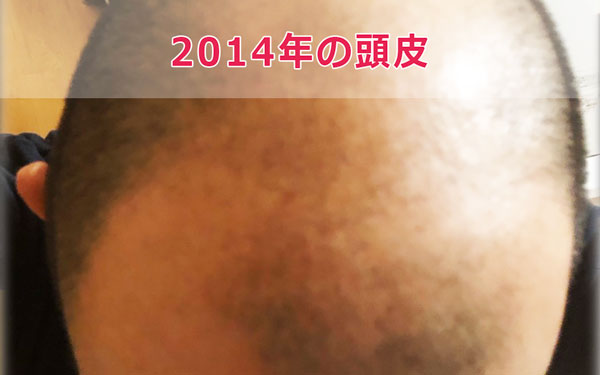 2014年の頭皮